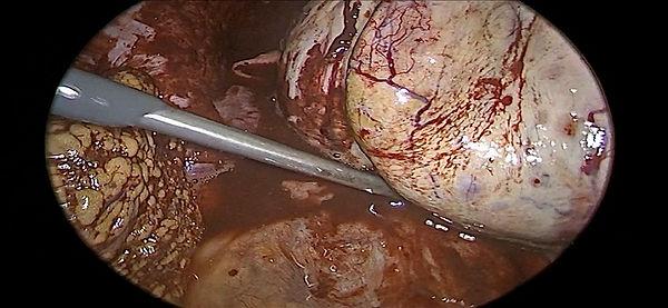 cikolata kisti ameliyatı ankara