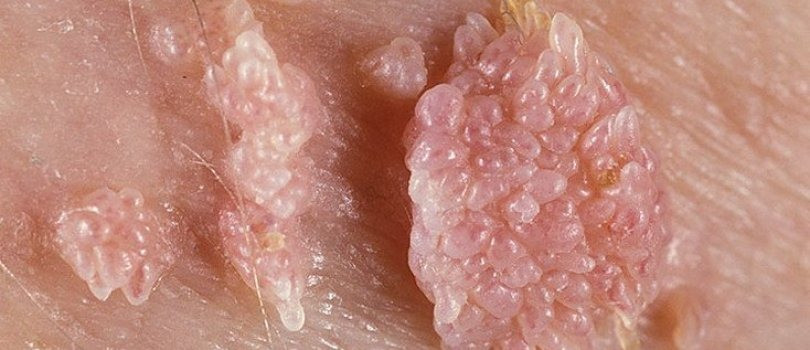 Genital siğiller ve kanser ilişkisi