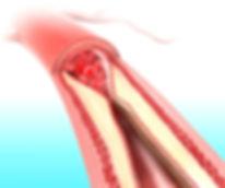 iStock Atherosclerosis.jpg