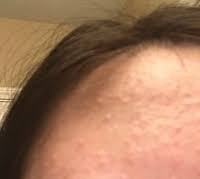 Is This Acne?