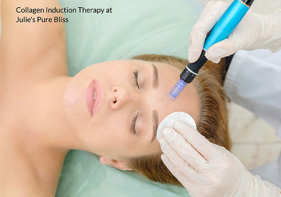 Collagen Induction Therapy/ Micro needling Treatment  - A Clinical Treatment -45 mins+