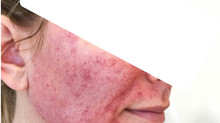 The bloody truth about Microneedling