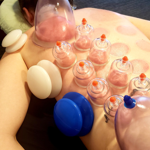 Blanket Cupping to Release Back
