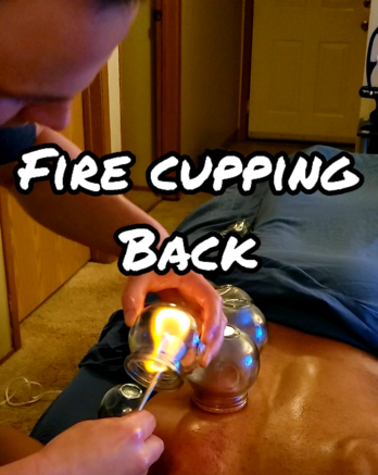 Fire Cupping Back