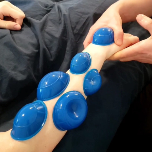 Trigger Point Cups on Forearm