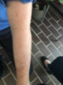 skin condition - eczema treatment
