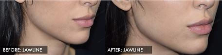Jawline Filler