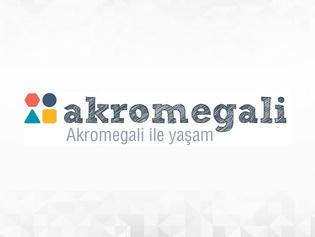 Akromegali.jpg