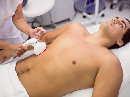 Vantagens da depilação masculina