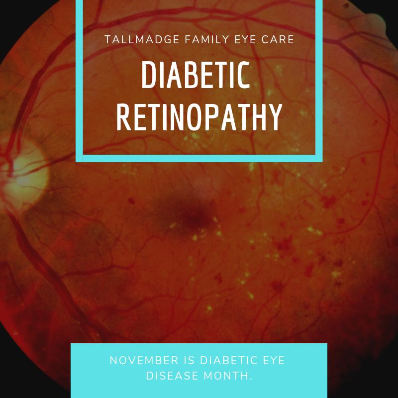 Tallmadge family eye care diabetes david dawson optometry