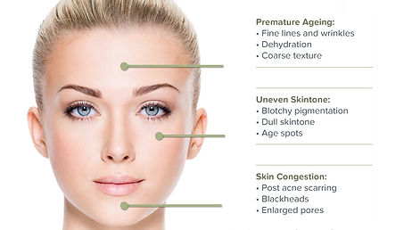 microdermabrasion-benefits.jpg