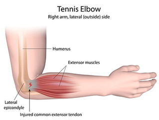 Golfer's / Tennis Elbow -  What Are They And How To Treat Them