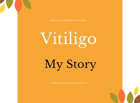 Vitiligo - My Story