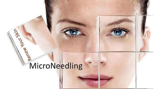 Microneedling pic 2 pptx.jpg