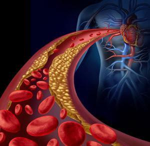 There's More To Heart Disease than Cholesterol!