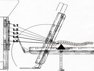 Как восстановить межпозвонковый диск?