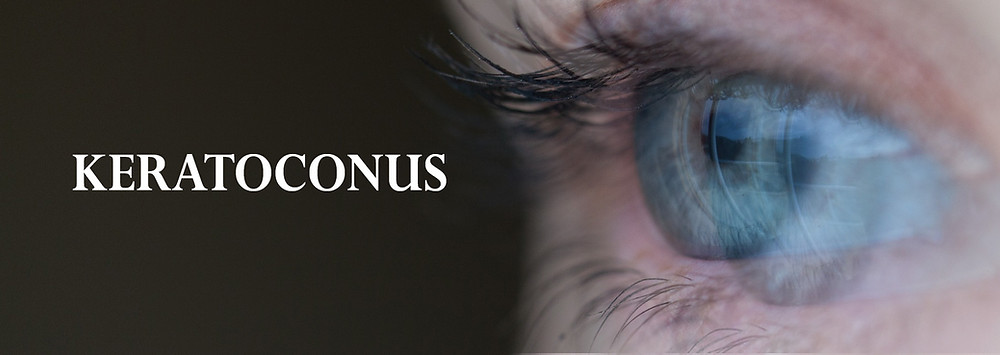 keratoconus disease optometrist parramatta vision