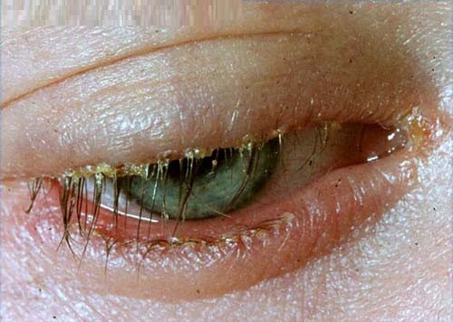 Blepharitis, a symptom of dry eye