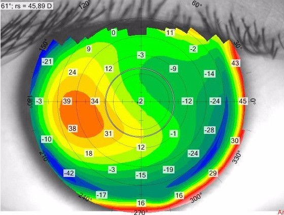 Corneal Topography for Keratoconus