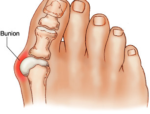 Got bunions? New Techniques Offer Easier Recovery