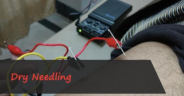 Dry Needling Workshop
