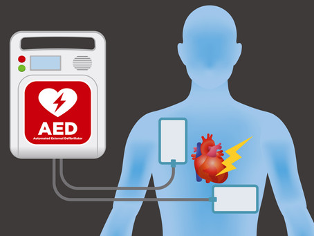 What Is an Automated External Defibrillator (AED)?