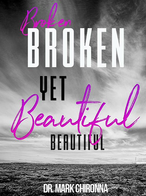 Broken Yet Beautiful | 4 MP3