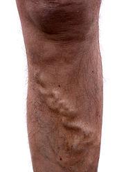 כאב בברכיים עם ורידים בולטים ברגליים