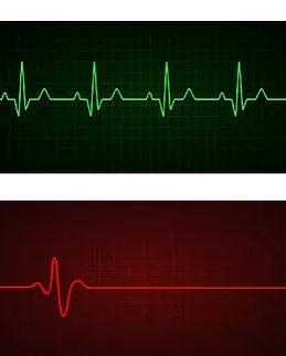 Heart beat and  flatliner.jpg
