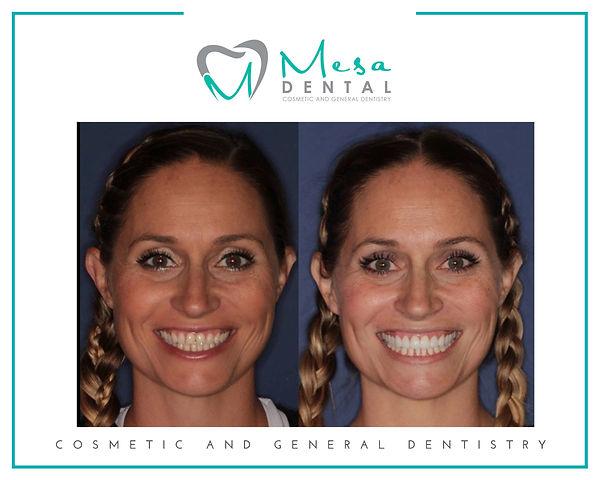 Mesa Dental Before and After Shots