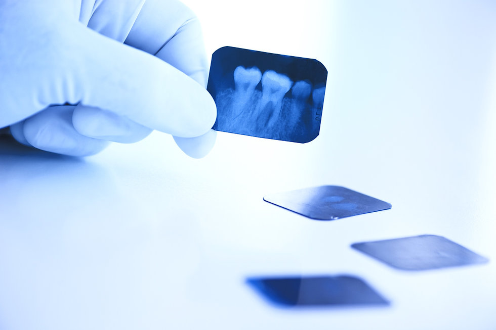 Dental%20x-ray_edited.jpg