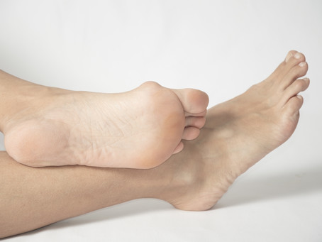 What Causes Bunions?