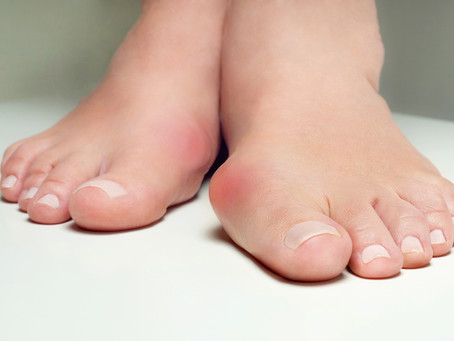 What are the Myths about Bunions?