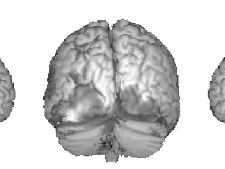 Come funziona la fMRI?