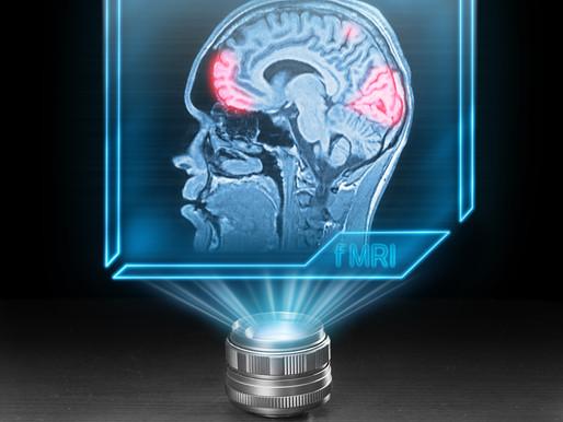 Sordomutismo: La Risonanza Magnetica Funzionale può prevedere le competenze linguistiche dei bambini