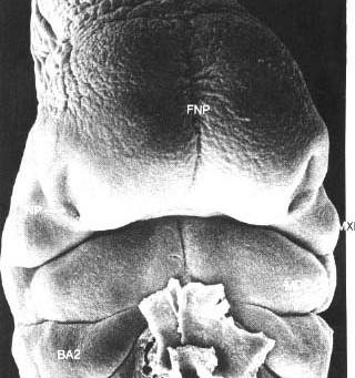 Sviluppo laringeo