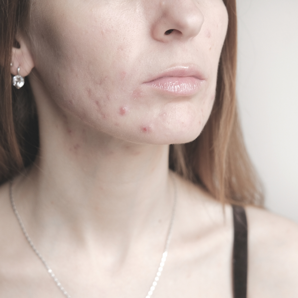 Mask Acne and how to fix it