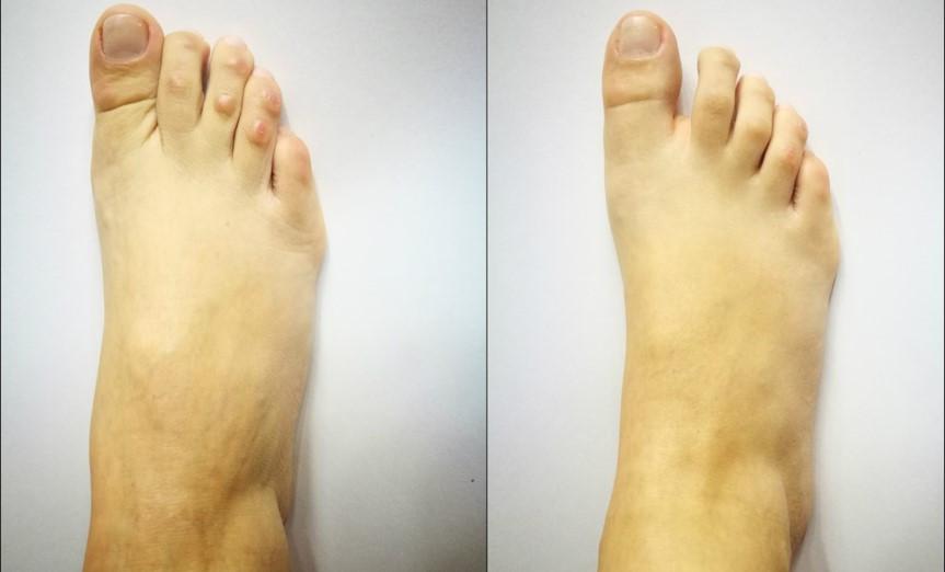 Vorher-Nachher: Behandlung mit BioRePeelCl3 FND