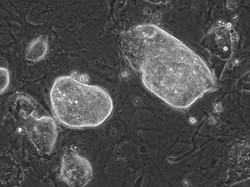 mGS細胞