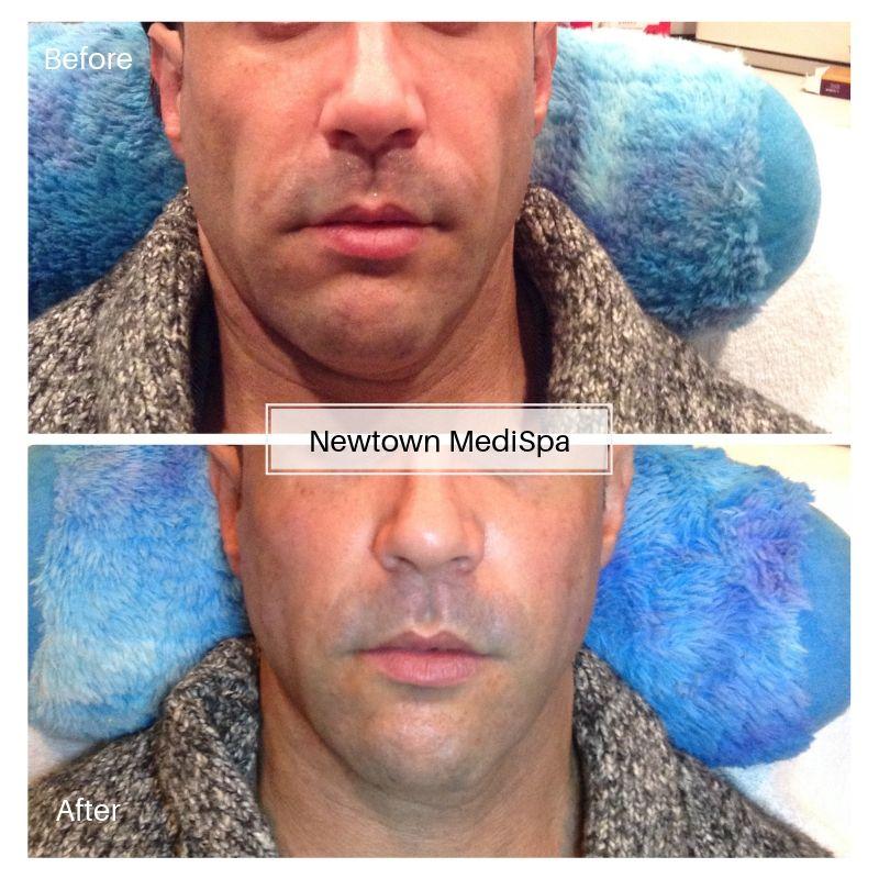 Midface Filler B&A