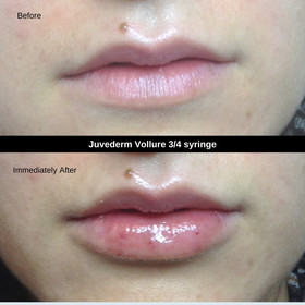 Lips Before After (4).jpg