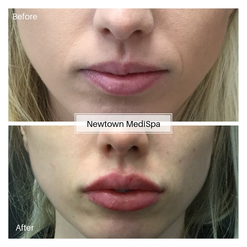 Lip Filler B&A
