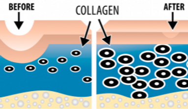 collagen_induction_therapy-300x174.png