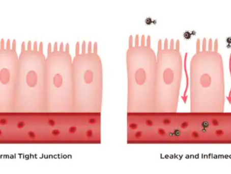Do you have what's called a Leaky Gut?
