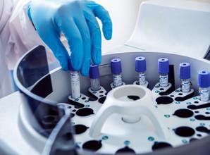 Plasma metals and serum bilirubin levels in manganese-exposed workers