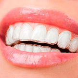 aparelho-dentario-transparente-preco-02.