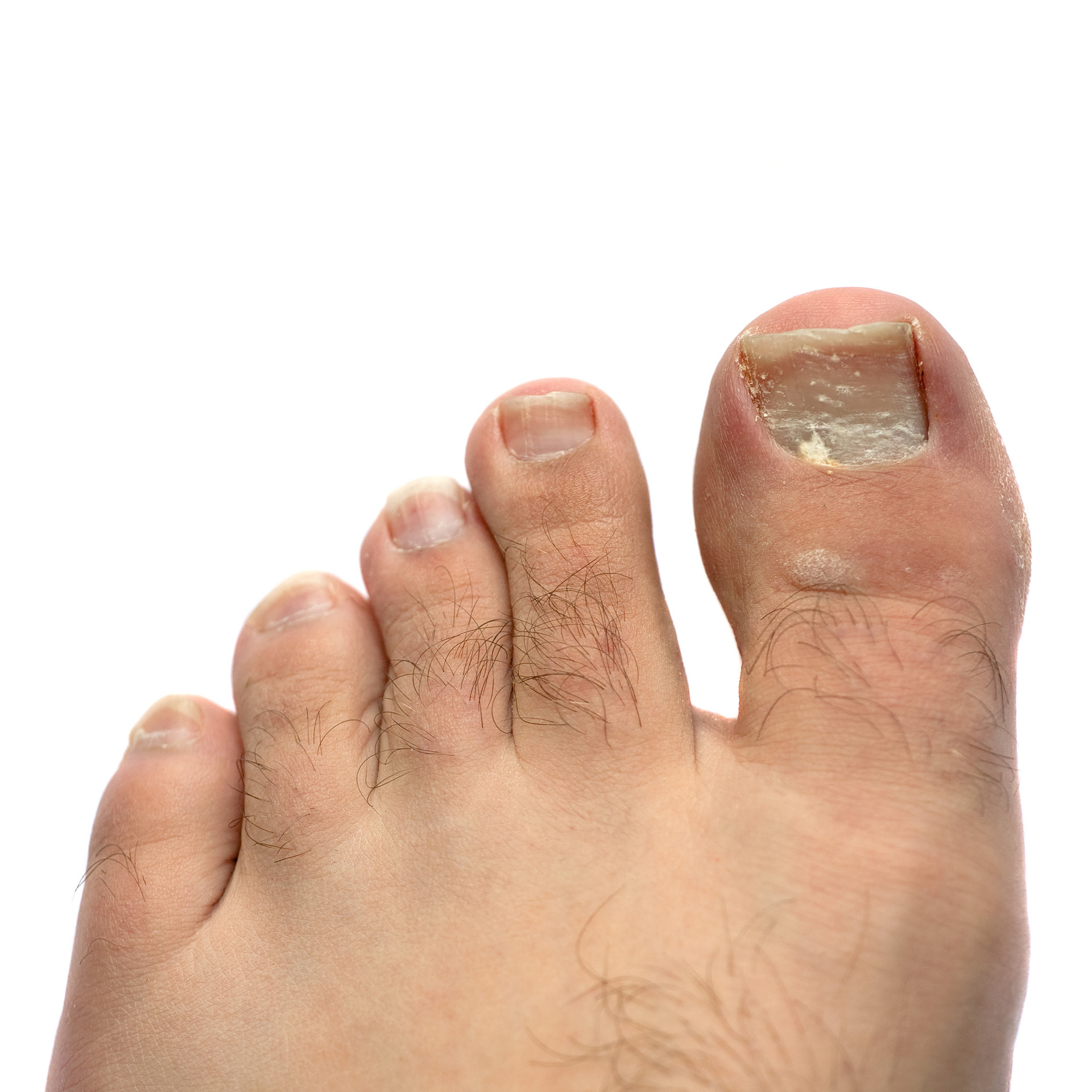 closeup-of-a-hairy-human-foot-and-toes-w