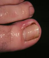 ingrown toenail 1.jpg