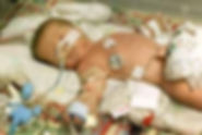 New York Birth Injury Attorney | New York | Law Office of Dimitrios Kourouklis, Ph.D.