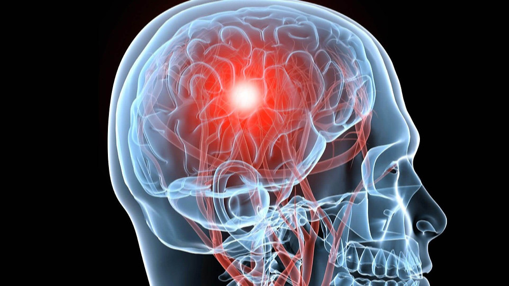 Brain Injury Attorneys | New York | Law Office of Dimitrios Kourouklis, Ph.D.